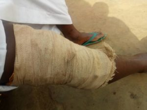 IMG 20181227 WA0024 300x225 - Techiman Eleven Wonders Defender Iddrisu Mohammed Resorts To Local Treatment As Knee Injury Threatens To end His Career